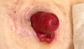 Stoma placement