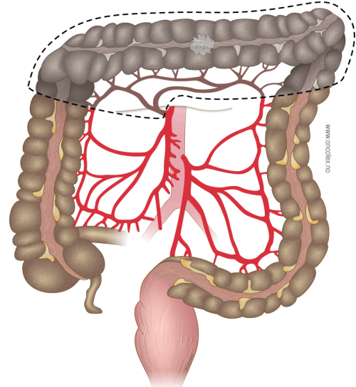 Resection of the transverse colon