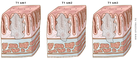 Staging of colon and rectum cancer