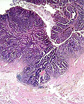 Histology of colon and rectum cancer